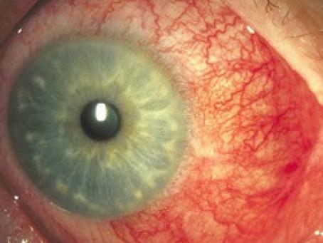 Esclerite - É uma doença ocular grave e pode levar a cegueira.