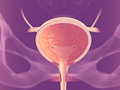 Cistite intersticial - Cerca de 90% dos portadores desta Cistite são mulheres
