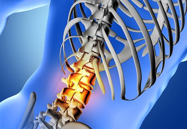 Estenose e Artrose Coluna Vertebral