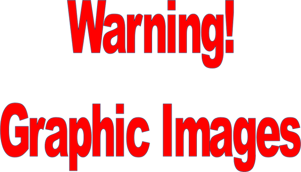 Warning of graphic images