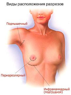 Доступы при маммопластике Ярославль