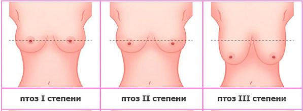 Подтяжка груди Ярославль. Птоз груди. Грудь весит. Маммопластика