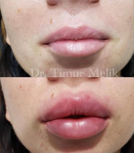 Увеличение губ Ярославль 06.JPG