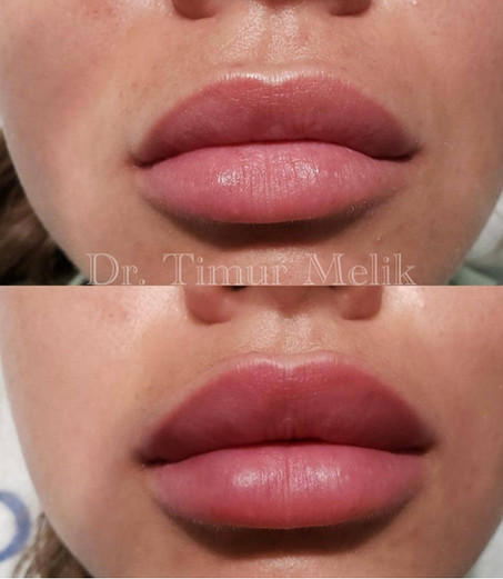 Увеличение губ Ярославль 05.JPG