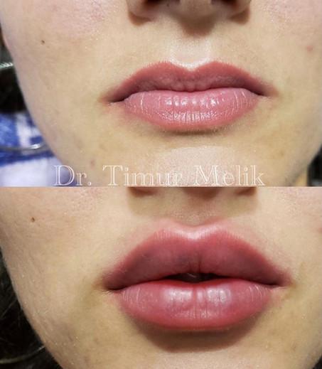 Увеличение губ Ярославль 07.JPG