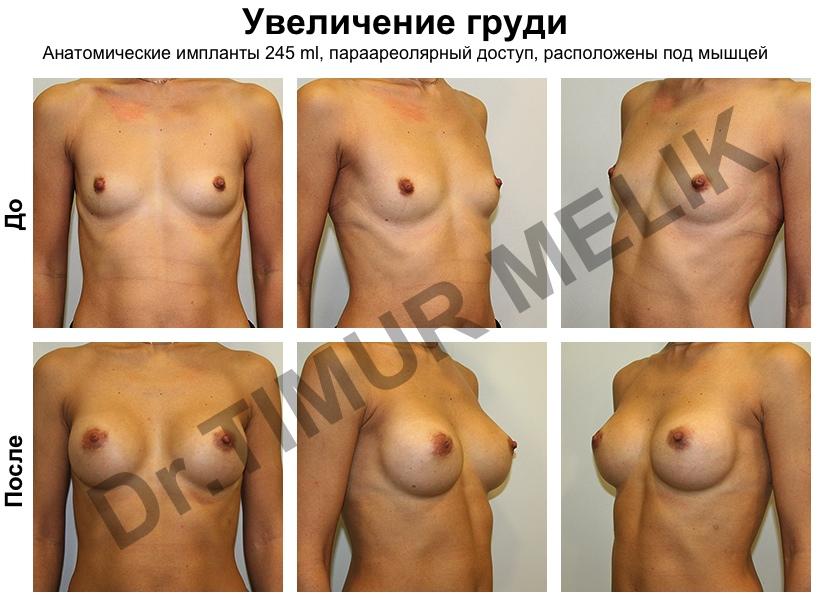 Увеличени груди 245