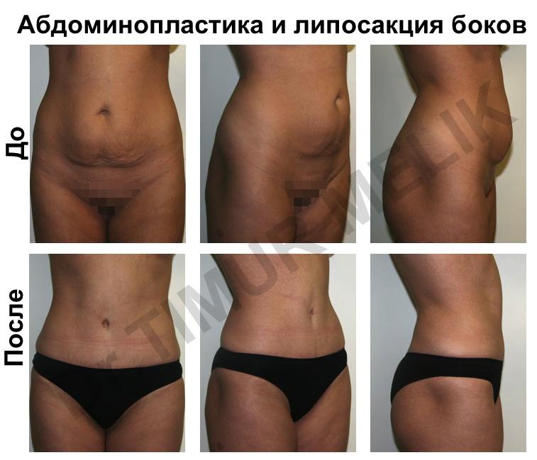 Абдоминопластика Ярославль 6