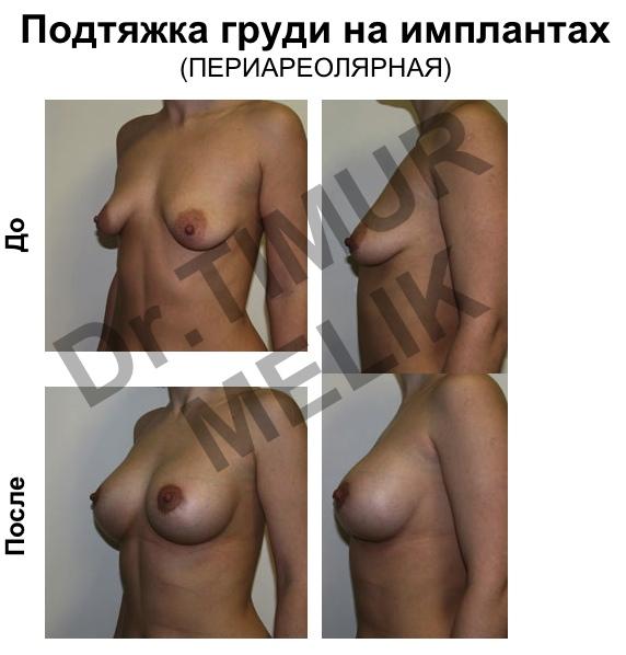 Подтяжка груди Ярославль