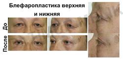 Блефаропластика Ярославль. Пластика век Ярославль. Нависшее веко Ярославль. Убрать грыжи Ярославль.