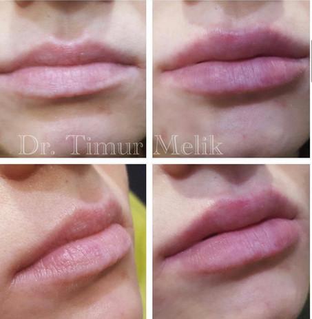 Увеличение губ Ярославль 10.JPG