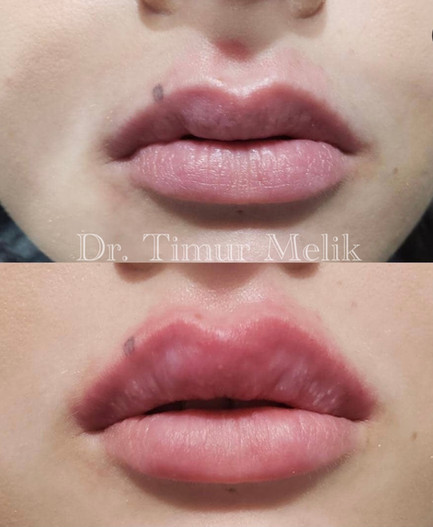 Увеличение губ Ярославль 03.JPG