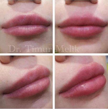 Увеличение губ Ярославль 11.JPG