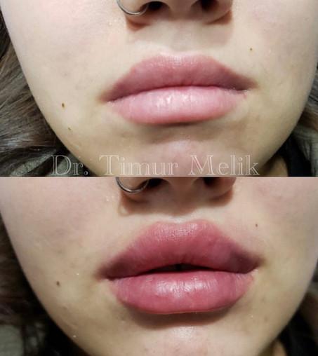 Увеличение губ Ярославль 08.JPG