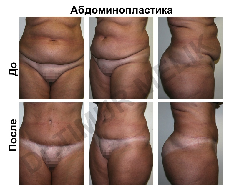 Абдоминопластика Ярославль