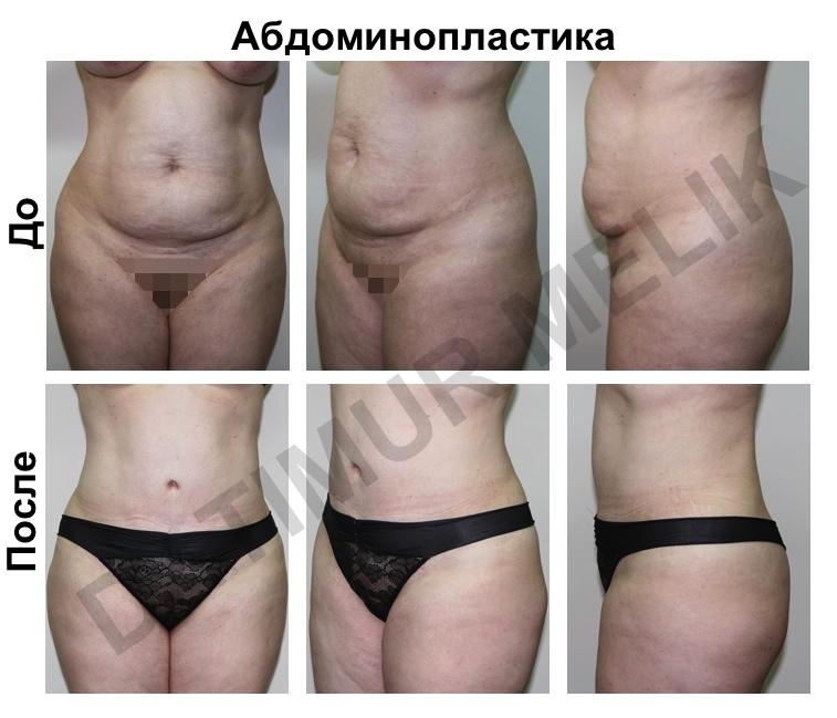 Абдоминопластика Ярославль 5