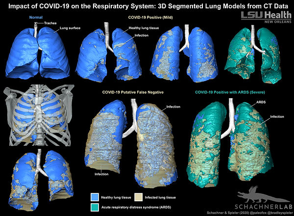 3D models of lungs with and without COVID-19