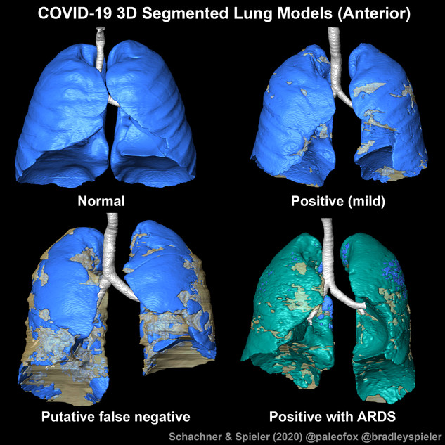 COVID-19/normal lung models