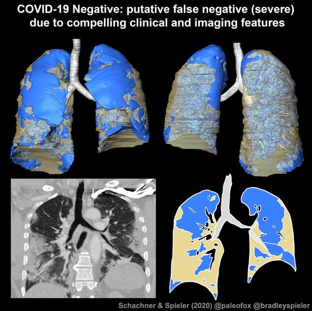 COVID-19 Neg (high clinical suspician for COVID)