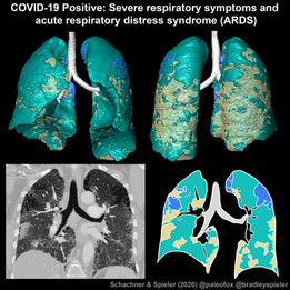 COVID-19 positive lungs with ARDS
