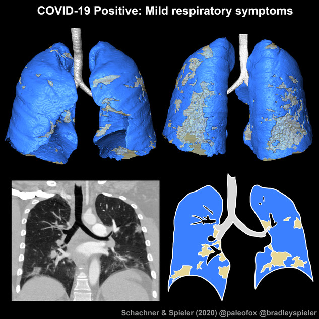 COVID-19 positive lungs with mild respiratory symptoms