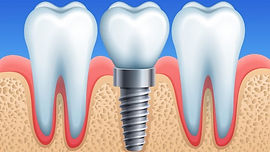 Dental-implant-696x392.jpg