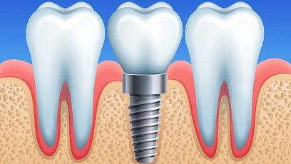 Dental-implant-696x392.jpg