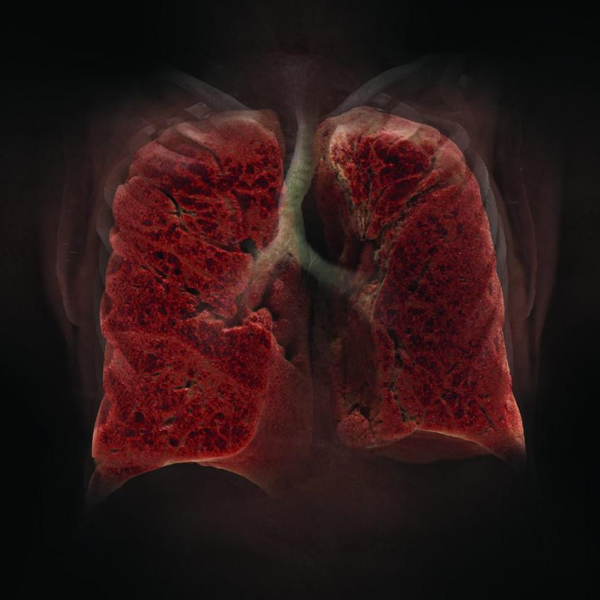 Lung_Flat-1024x1024