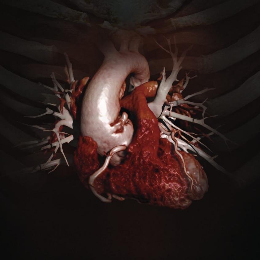 Cardiac_Flat-1024x1024