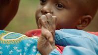 Child with hand disfigurement. Lillian Lincoln Foundation.