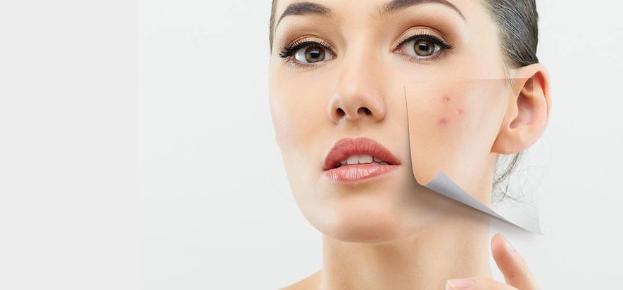 10-Simple-Remedies-For-Treating-Dry-Skin
