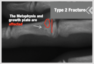 Growth Plate Fractures Part 2