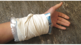 SELF TEST: Can You Diagnose the 3 Most Common Wrist Pains with Climbing?
