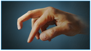 Part 1: Series- Finger Joint Injuries and Extensor Tendon Ruptures/Sprains