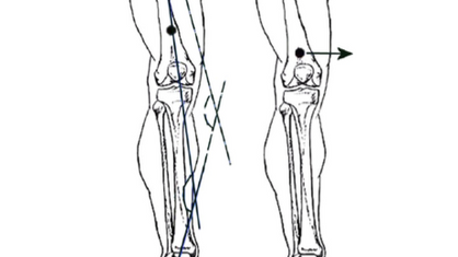 KNEES: The 1 Leg Squat Test and You.