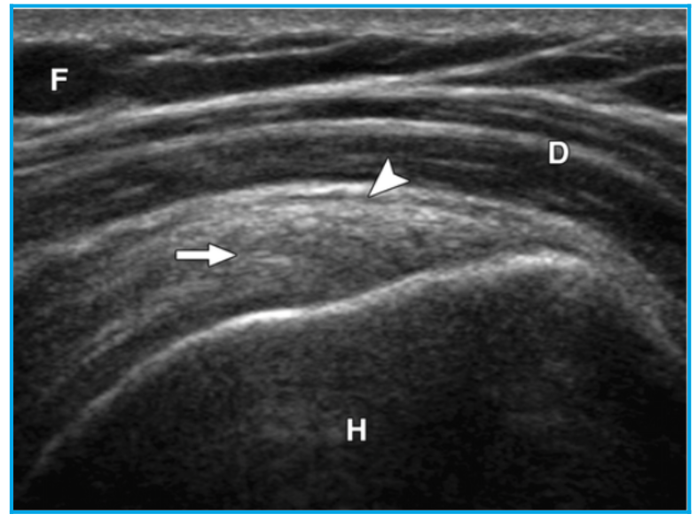 Diagnostic Ultrasound for muscular or joint injuries