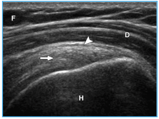 Diagnostic Ultrasound or MRI for Injuries?