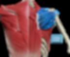 Climbing injury shoulder rotator cuff