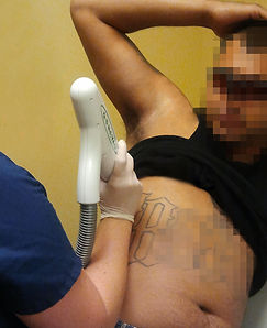 tattoo removal pixelated.jpg