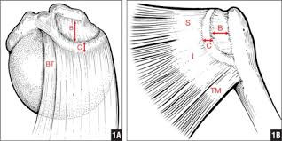 Massive irreparable rotator cuff tear and Superior Capsular Reconstruction