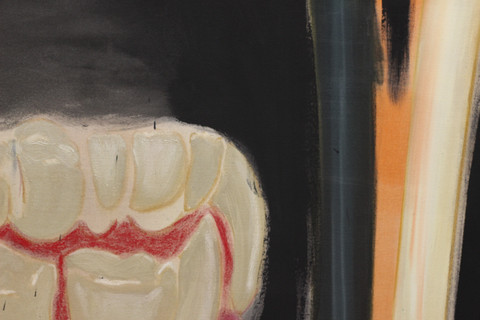 Hal's Toothache (2020) Detail