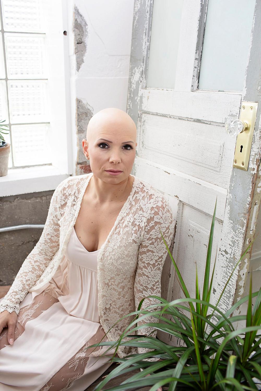 Alopecia areata bald hair loss mother mom wig wigs motivational speaker public speaker