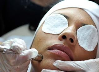 Microdermabrasion for better skin