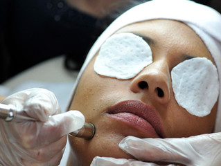 Microdermabrasion for better skin