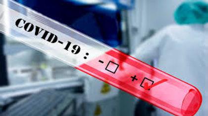Prohíben la venta en farmacias de los test rápidos para detectar  COVID-19