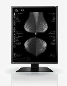 Monitores de grado médico Eizo - Acibiomedica - Radiforce GX650.png