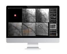 Visor de imagenes DICOM radiologia alma cardio - Tecnologia digital ALMA MEDICAL - acibiom