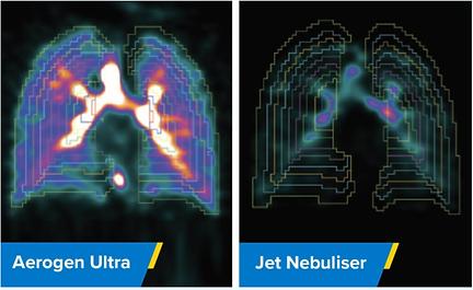 aerogen ultra vs nebulizer.png