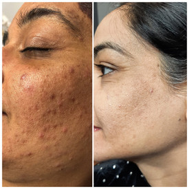 Customized Acne Treatment.JPEG