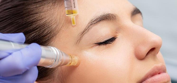 Micro-Needling, Needling, Mesotherapie