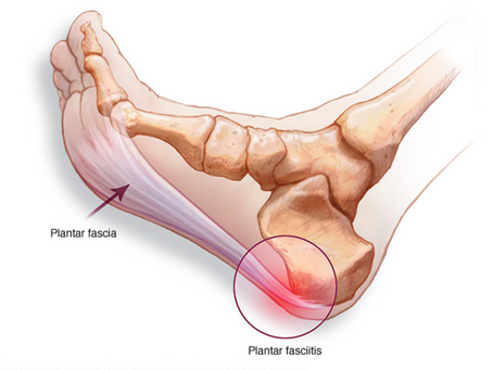 The TOP 5 things you need to know about Plantar Fasciitis.